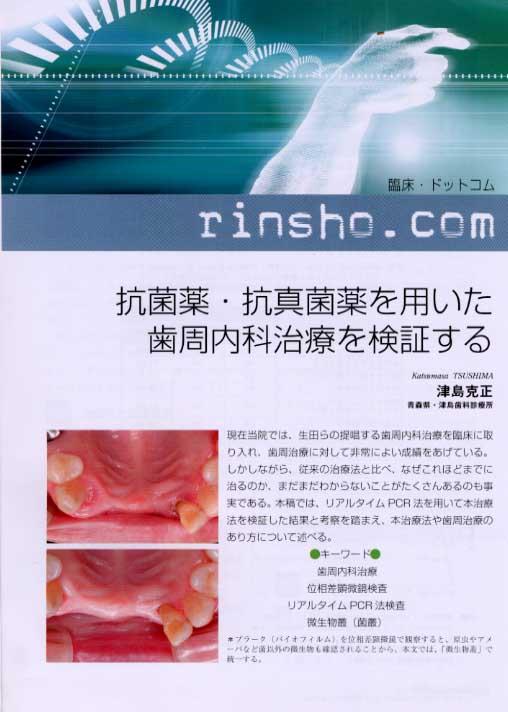 「抗菌薬・抗真菌薬を用いた歯周内科治療を検証する」